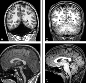 cerebellum brain-scans-1